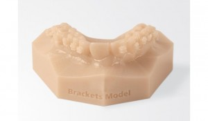 3d_printed_orthodontic_model