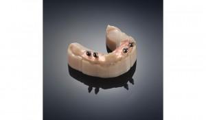 Multiple_materials_dental_mold