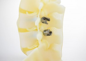 Spine Implants Detail - BioMimics